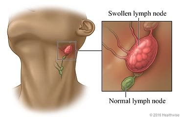Swollen Lymph Nodes  What Are, Symptoms, Causes, Treatment. The Law Of Criminal Procedure Deals With. Medication For Knee Arthritis. Allergic To Cold Weather Rhinitis. Physical Therapy For Multiple Sclerosis. Explain Cloud Computing Mold Removal St Louis. Cystic Fibrosis And Pancreatitis. Mechanical Engineering Businesses. University In Florida Miami Receive Fax Free