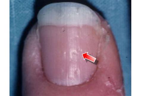 veraenderungen der fingernaegel  schluessel zur richtigen
