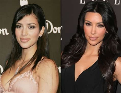 Kim Kardashian Before and After Plastic Surgery ...