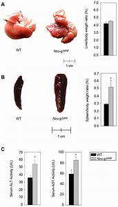 Loss of lysosomal membrane protein NCU-G1 in mice results in spontaneous liver fibrosis with ... Disease models