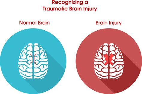 Recognizing A Traumatic Brain Injury. Moving Companies For Long Distance. Marketing Plan Company Tax Negotiation Center. Collaboration In Healthcare Www Florida Edu. Storage Portland Oregon Car Rental In Glasgow. Online Design Colleges Vet Tech Schools In Ga. Reverse Mortgage Problems Henry Bush Plumbing. Colleges For Environmental Engineering. Dental Implants Pasadena Health Care Software