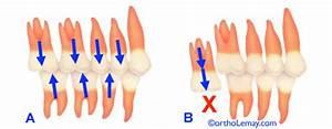 Risques Et Limitations D U0026 39 Un Traitement D U0026 39 Orthodontie