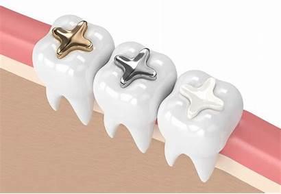 Fillings Dental Direct Types Ceramic Regular Indirect