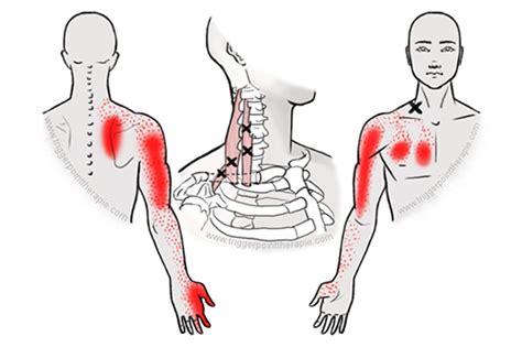 pijn schouderblad links