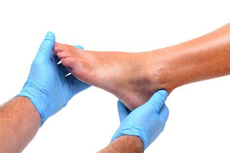 diabetes gangrene  diabetic foot amputation risks
