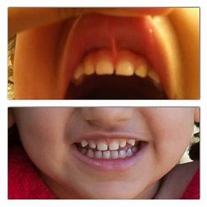 Discovering And Correcting Lip Tie On A Toddler And An Infant