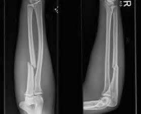 Ulna Bone Fracture