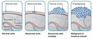 Factsram Blogspot  How Cancer Spreads To Other Part Of The