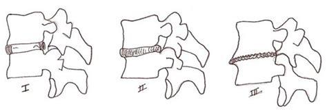 nonfusion techniques  degenerative lumbar diseases