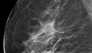 Radiologie Leipzig Schönefeld : mammographie radiologie am diakonissenkrankenhaus ~ Buech-reservation.com Haus und Dekorationen