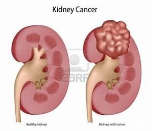 Kidney Pain Location Diagram | Get Free Image About Wiring ...
