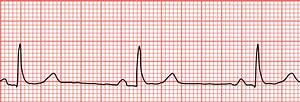 Sinus bradycardia - Wikipedia