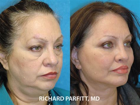 Facelift Before And After Photos  Dr Richard Parfitt. Social Media Market Share Forum Forex Trading. Business Lines Of Credit For New Businesses. New York Long Term Care Insurance. Top Business Colleges In Illinois