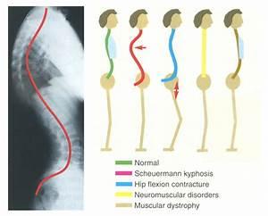 Scheuermann, disease - pediatrics - msd manual Professional