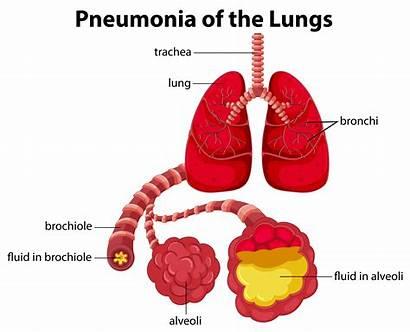 Pneumonia Lungs Diagram Bronchitis Death Causes Cause