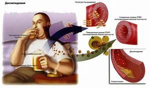 Неумывакин лечение содой и перекисью аденома