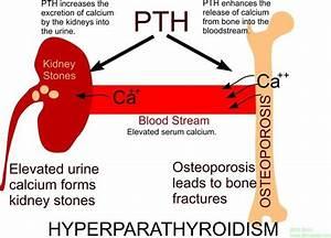 Kidney Stones, Osteoporosis  Parathyroid Disorders Hyperparathyroidism
