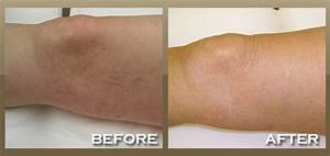 Skinnpeccable | Laser Vein Removal | Los Angeles