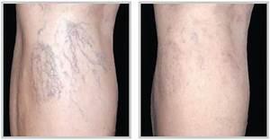 Spider Vein Removal Facial & Leg veins | Laser Creations