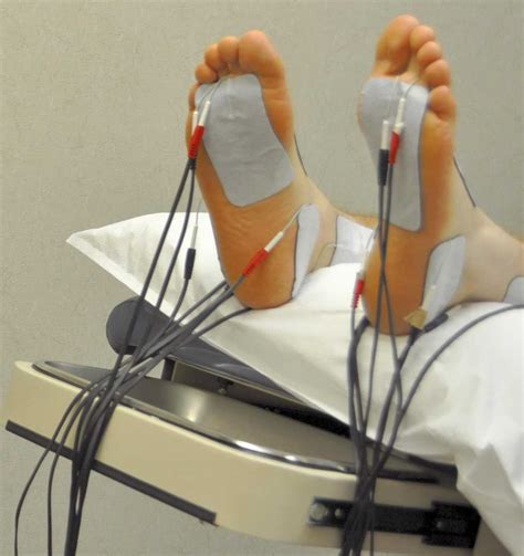 New Hope For Neuropathy Sufferers Tanglewood Foot