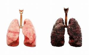 Lung Cancer in Never-Smokers: An Epidemiologic Perspective - IASLC Lung Cancer News  Environmental Tobacco Smoke Secondhand Smoke