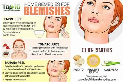 Blemishes Remedies Rid Pigmentation Skin Remove Tips