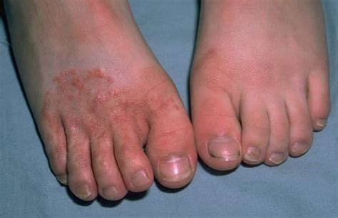 Athletes Foot  Causes, Symptoms, Home Remedies, Treatment. Marketing Plan Company Tax Negotiation Center. Application Lifecycle Management Tool. Roofing Contractor Directory. Education Requirements For Radiologist. Jeep Dealerships San Diego Top Design Schools. Car Accident Lawyer Charlotte. Engineering Masters Degree Credit Card Debit. Colleges That Teach Zoology Las Vegas Solar