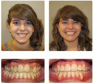 Before and After MO Smiles