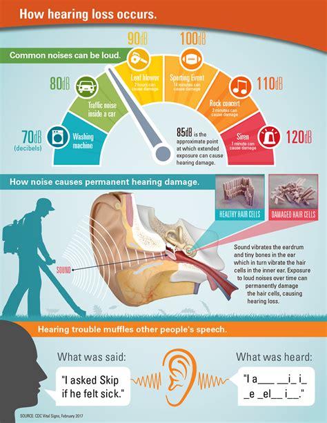 noise induced hearing loss hearing loss association