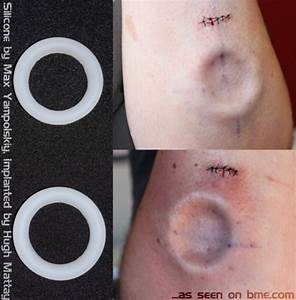 Implants | BME: Tattoo, Piercing and Body Modification News