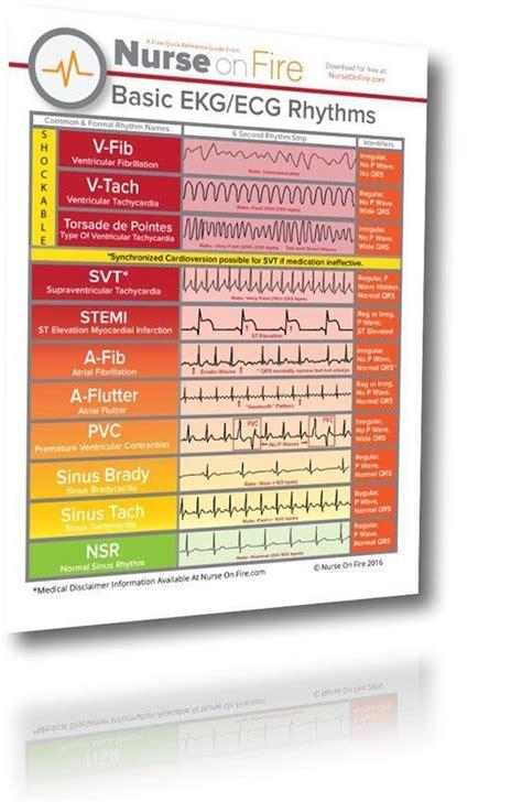 ekg ecg cheat sheet  basic rhythms nurses