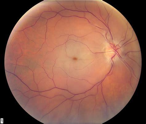 crao wills eye hospital