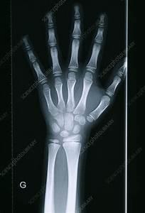 Delayed Bone Age  X-ray - Stock Image  0787