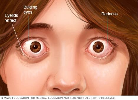 Graves' Disease  Symptoms And Causes  Mayo Clinic. Secondary Signs. Lung Carcinoma Signs. Holy Eucharist Signs Of Stroke. Transportation Signs. Sinus Drainage Signs. Mnemonic Signs Of Stroke. Tmj Signs. Kritikal Signs Of Stroke