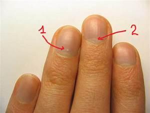 Причина грибков на ногтях