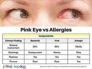 Pink Eye Vs Allergies Causes Symptoms And Treatment