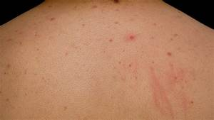Sweat Pimples On Chest | www.pixshark.com - Images ...