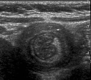 Imaging And Intussusception