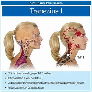 78  Images About Trigger Point Therapy On Pinterest