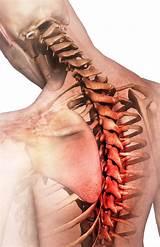 Лечение остеохондроза позвоночника в твери