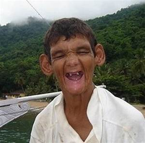 Top 10 Ugliest People in the World - http://www.weirdlife ...