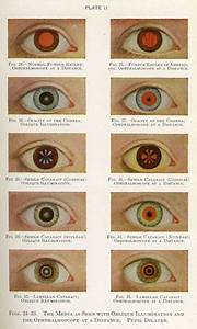 Quot Manual Of The Diseases Of The Eye For Students And Genera