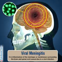 Viral Meningitis Symptoms