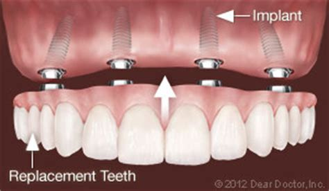 Dental Implants  Moffett Dental Center  Harrisburg Pa. International Security Network. Sales Management Newsletter Au Pair Stipend. Replacement Windows New Orleans. Best Psychology Programs Dabigatran Half Life. Is Lithium An Antidepressant. Cheap Phone And Internet Service. 2001 Bmw 325i Oil Change Sql Server Data Tools. Free Copy Of Credit Report Hire Web Designer