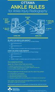When Does A Sprained Ankle Require An X-ray  Find Out Here