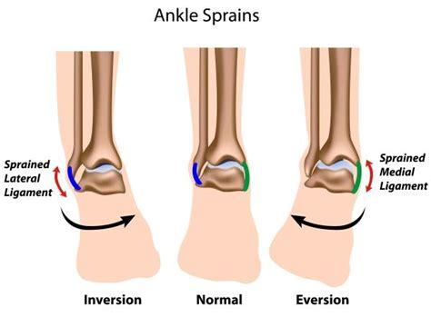 Anterior Talofibular Ligament Sprain