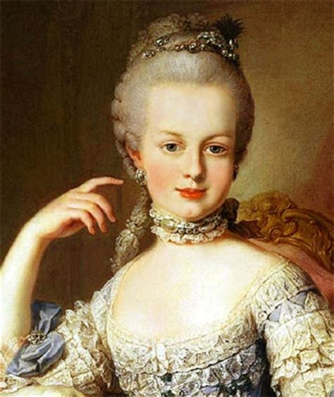 sudden hair loss in marie antoinette syndrome white hair and hair loss