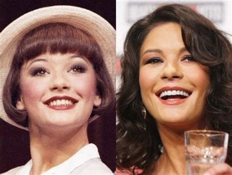 Celebrity Teeth Before And After The Correction Dentist