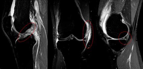 Lesione Corno Posteriore Menisco Interno Fissurazione Menisco Scopri Tutte Le Cause E Le Cure