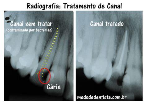 si e de canal curativo não é tratamento de canal medo de dentista